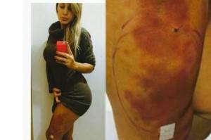 infezione-gambe-andressa-urach-638x425