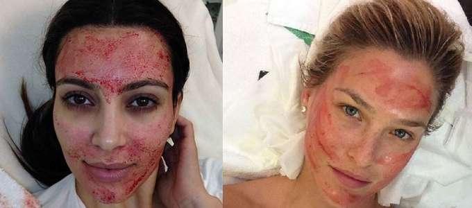 Applicazione cosmetica di un aloe per pelle di faccia