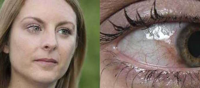 foto tumore occhi-5