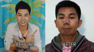 cleft-chin-nose-lift-before-after