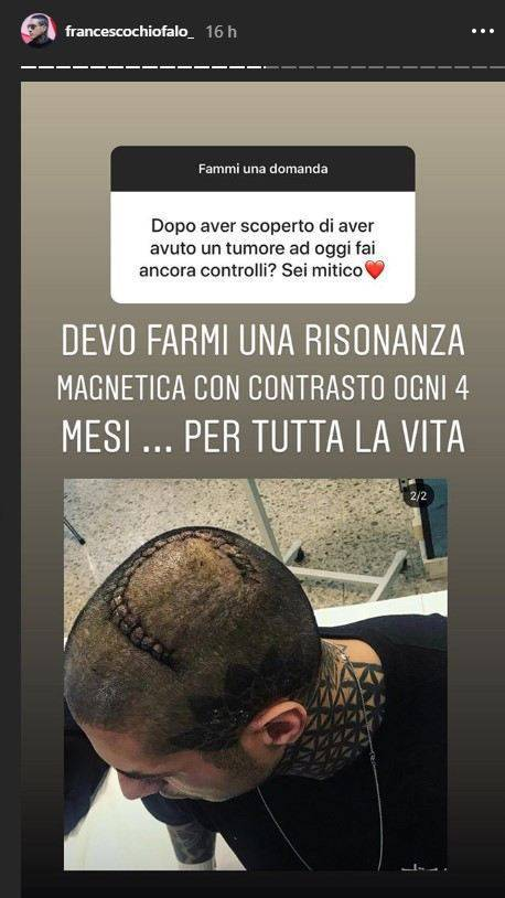 Francesco Chiofalo risposta