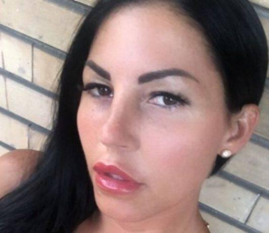 Eliana Michelazzo contro perricciolo