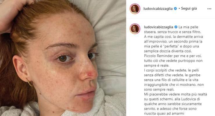 """Ludovica Bizzaglia mostra il suo viso senza filtri e senza trucco: """"La dermatite arriva all'improvviso"""""""