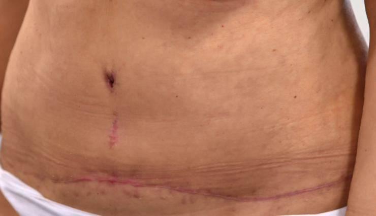 dopo intervento chirurgico