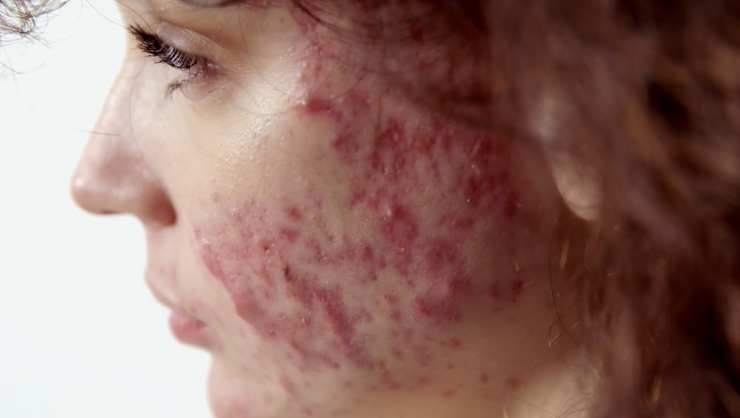 La clinica della pelle Mariah