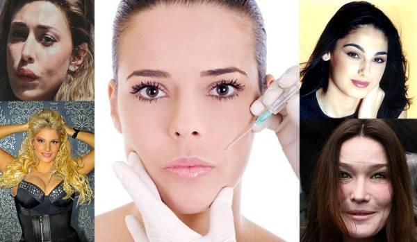Le star e il bisturi Belen Rodriguez e le polemiche sulla chirurgia estetica